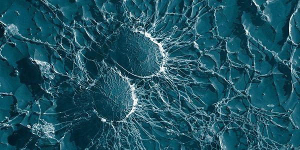 Antibiotika wirkungslos: Willkommen im post-antibiotischen Zeitalter!